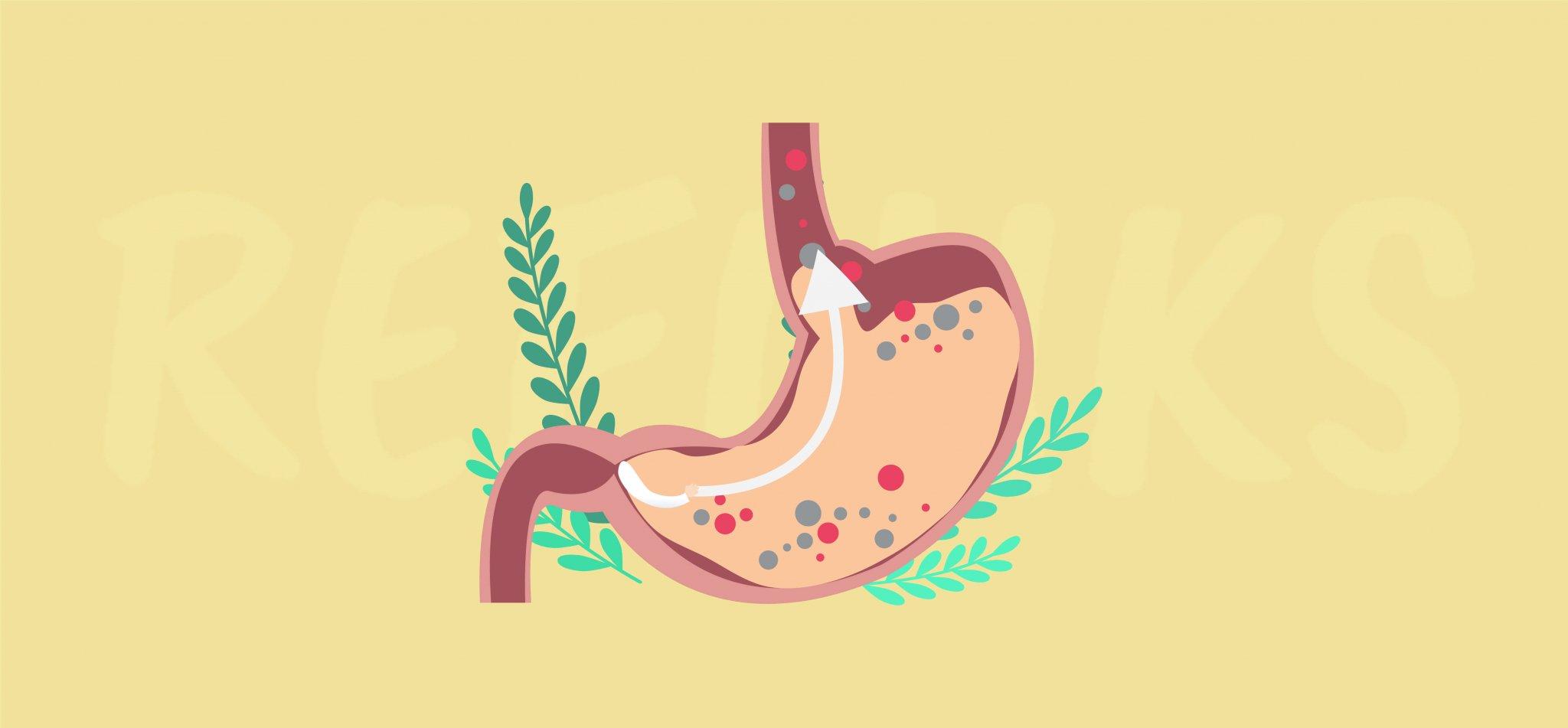 Dieta w refluksie